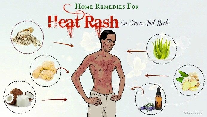 36 Home Remedies For Heat Rash On Face And Neck