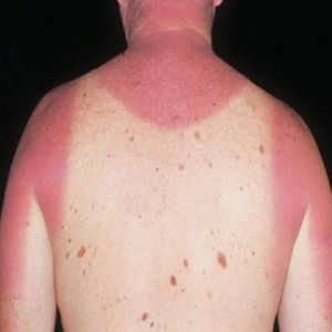 5 Effective Home Remedies For Sun Poisoning