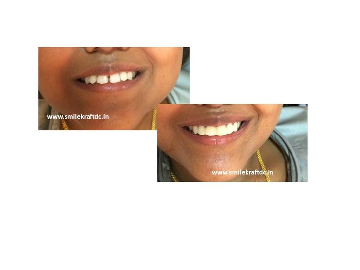 how to close gaps in teeth with braces faster