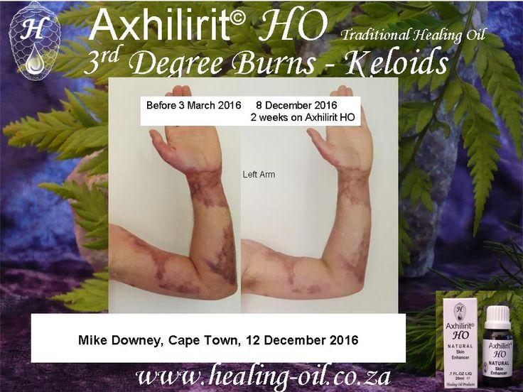 Axhilirit HO Healing Oil 3rd Third degree burn keloid scarring. www.healing-oil.co.za
