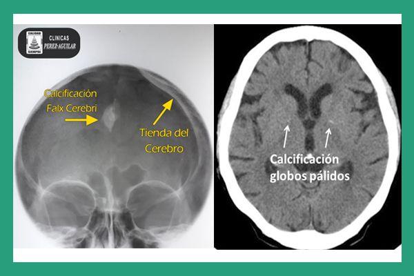 Las calcificaciones intracraneales se refiere a los depósitos de calcio que se presentan en la Calota craneana (Cráneo) o intracerebral que son variantes anatómicas normales, que se presentan en al…