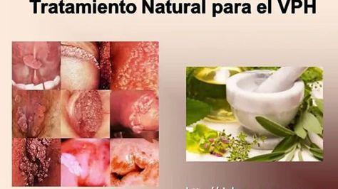 Aquí los Mejores Remedios Naturales para El Virus del Papiloma Humano (VPH).