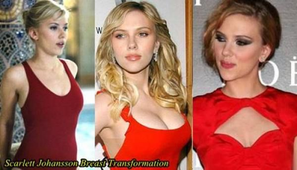 Breast Augmentation With Silicone Implants (B to DDD ...