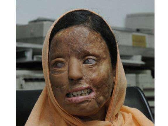 Sonali Mukherjee, a victim of an acid attack in 2003