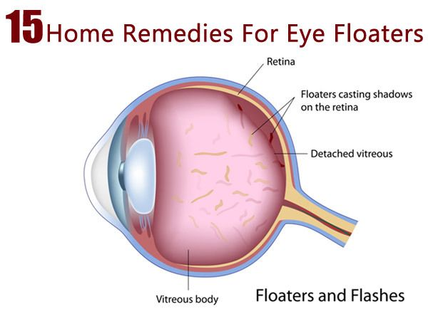 Eye Floaters Flashes Stress