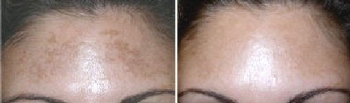 Fractional Laser Treatments of the forehead