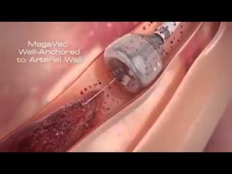 Heart Stent video (Angioplasty)