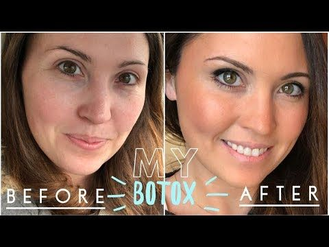 Botox My Before Amp After Video Crows Feet Amp Brow Lift