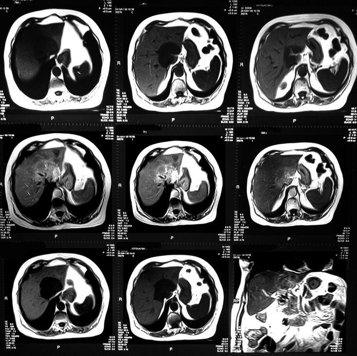 Resonancia magnética del abdomen, secciones axiales.