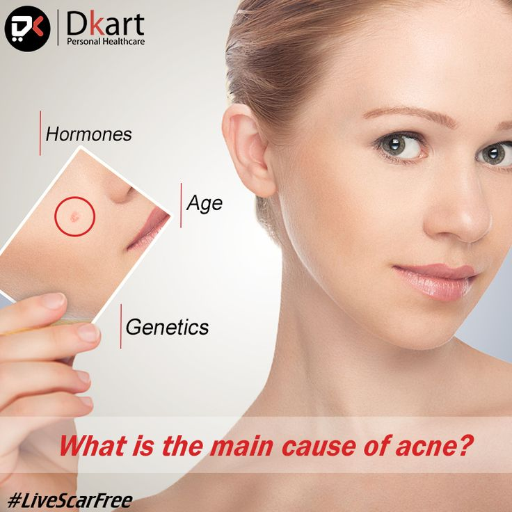 Do you know the main reason of #Acne? #Dkart #Dipogen #Diponed #LiveScarFree