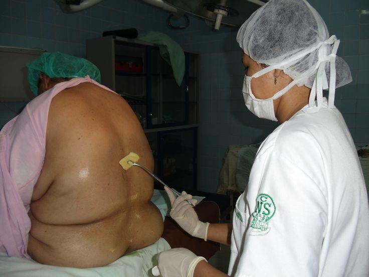 asepsia y antisepsia para iniciar un bloquoe regional, paciente con los hombros relajados, el mentón en el torax y la columna relajada....