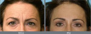 The significance and need of brow lift surgery Albany will be conveniently.. http://www.modernmedicineandyou.com/brow-lift-get-a-brand-image-by-enhancing-beauty-and-appearance/
