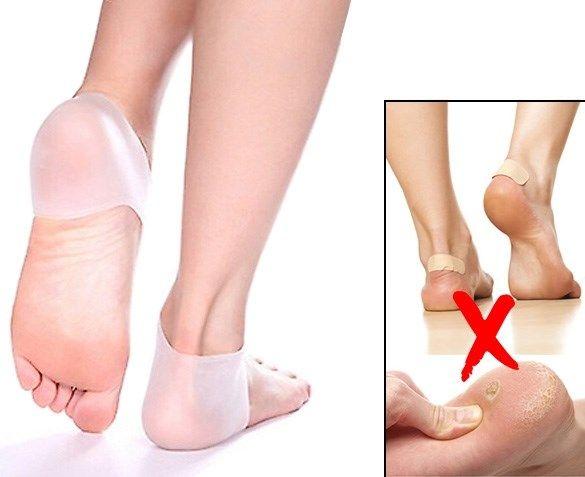 Helpt de enkel ondersteunen  Werkt goed tegen de vorming van eelt  Zorgt voor een betere vorm van de voet, bijvoorbeeld bij ingevallen voetbogen  Helpt tegen plantar fasciitis; pijn aan de onderkant van de voet tussen de hiel en de tenen