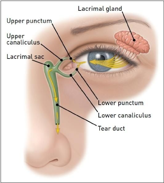Tear Duct Infection | Landa & Landa Eye Care Specialists, LLC - Tearing