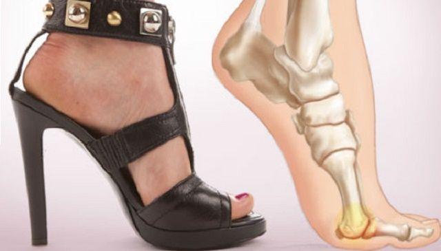 """Abbiamo pensato di condividere con voi un """"supertrucco"""" per alleviare i fastidi legati all'utilizzo di scarpe con tacchi alti. Provate e fateci sapere!"""