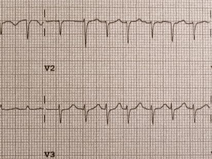 Pericardial Effusion, aka Fluid Around The Heart