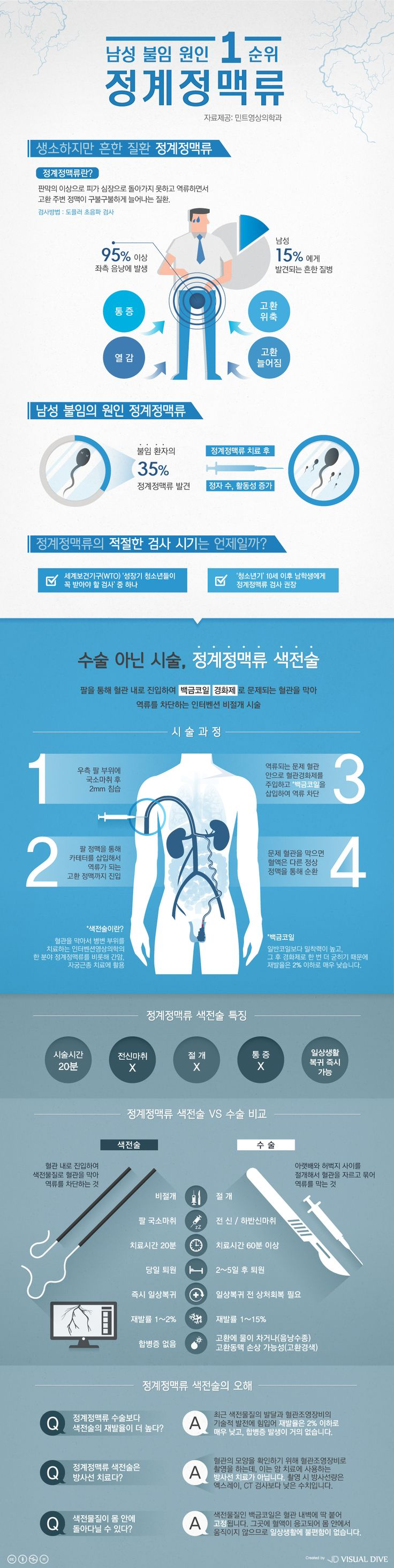 남성 불임 원인은 정계정맥류…수술 없이도 치료 가능하다 [인포그래픽] #varicocele / #Infographic ⓒ 비주얼다이브 무단…