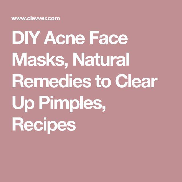 DIY Akne Gesichtsmasken, natürliche Heilmittel, um Pickel, Rezepte #pimplesremedyhomemade aufzuklären