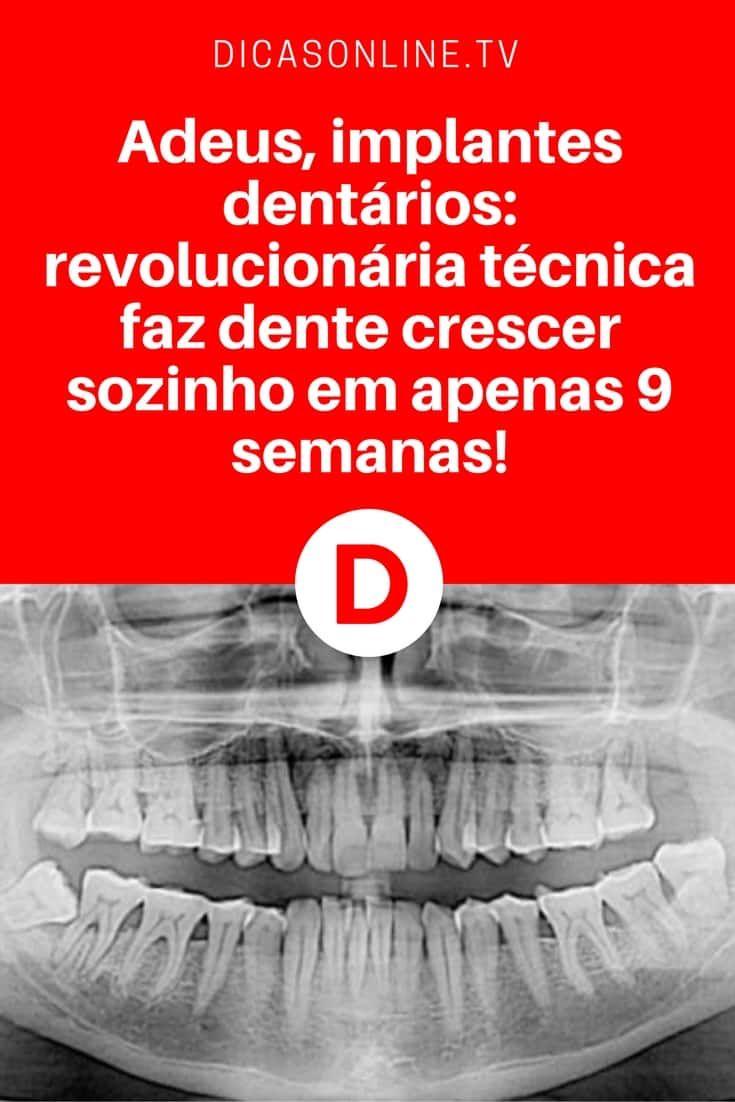 Alternativa a implantes dentários | Adeus, implantes dentários: revolucionária técnica faz dente crescer sozinho em apenas 9 semanas! | Uma descoberta que vai revolucionar o cuidado com os dentes... Leia e saiba tudo ↓ ↓ ↓
