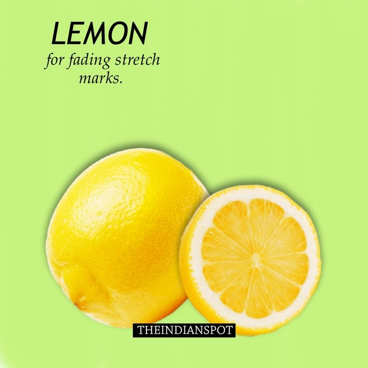 Lemon to fade stretch marks - top home remedies
