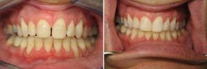 Chipped teeth? Misshapen teeth? Gaps? Discoloration? Consider dental bonding--this is the best solution for a wide range of cosmetic dental shortcomings. See http://studiocitydentalcenter.com/bonding/ and make an appointment for dental bonding treatment.