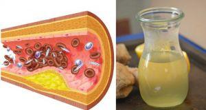 Mi Madre Siempre Tenía el Colesterol y la Presión Alta, mi Abuela le dio Esto y ¡Adiós Pastillas!