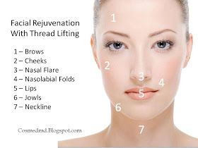 Cosmetic Medicine, MD: Thread Lifts - The No-Surgery Face Lifting Alternative