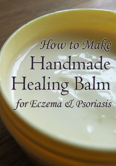 Handmade Healing Cream for Eczema & Psoriasis http://www.lovelygreens.com/2012/05/handmade-healing-cream-for-eczema-and.html