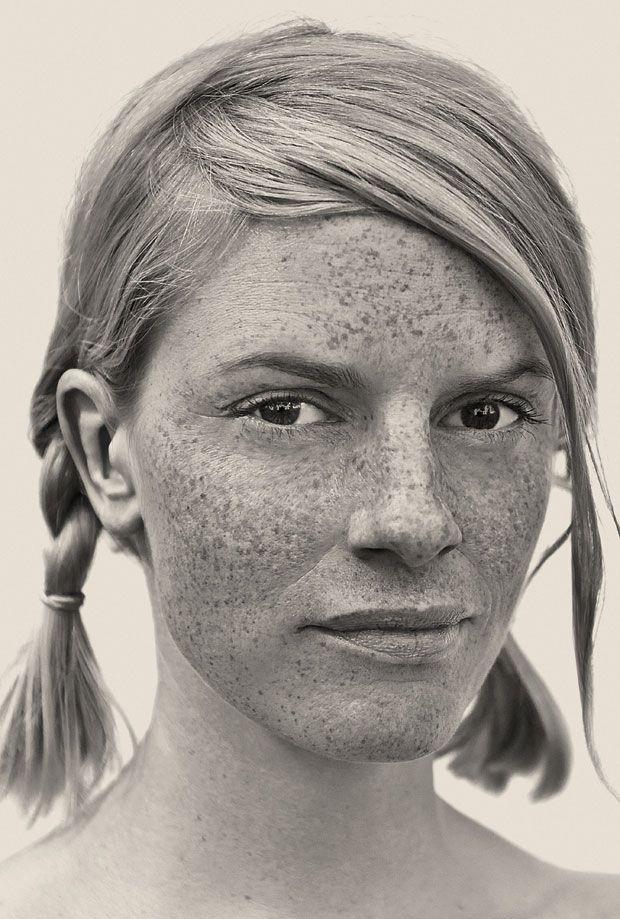Freckles-15