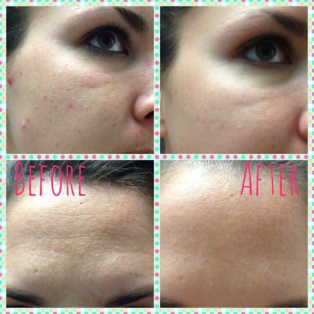 Real results from Arbonne Intelligence Genius product ...