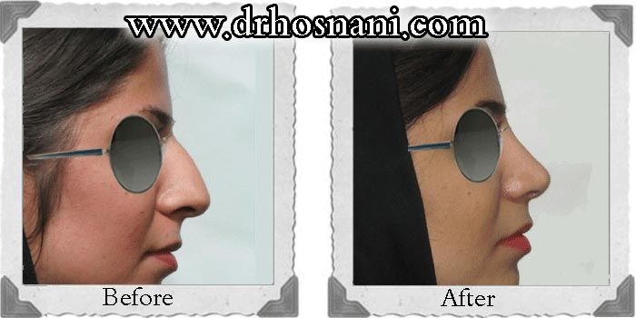 Open rhinoplasty was performed to remove the nasal bump, make a slight curve on the nasal bridge and raise the nasal tip. #rhinoplasty #nosejob #Iran #nose_job_for_dorsal_hump #nose_job_lift_nasal_tip #nose_job_refine_nasal_bridge For more before and after photos of nose job, visit the website.