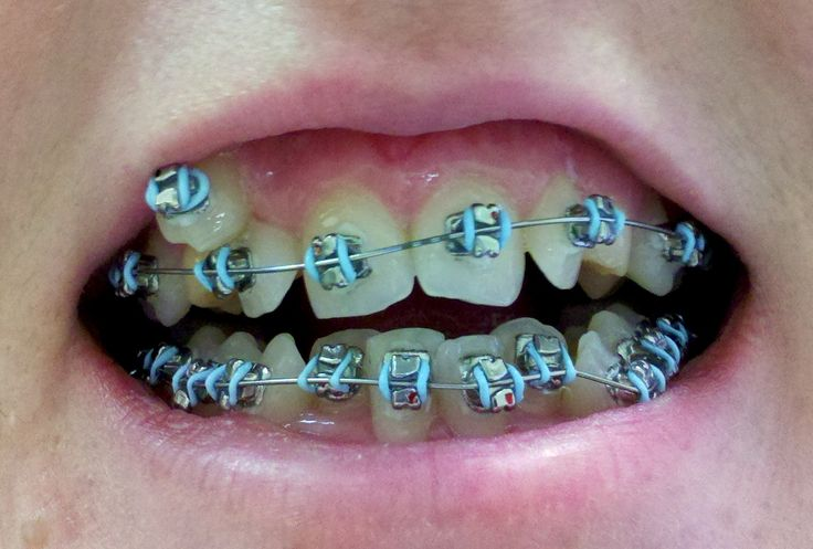 How To Pick The Best Teal Braces For Your Teeth? (mit Bildern
