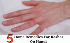 5 Home Remedies For Rashes On Hands