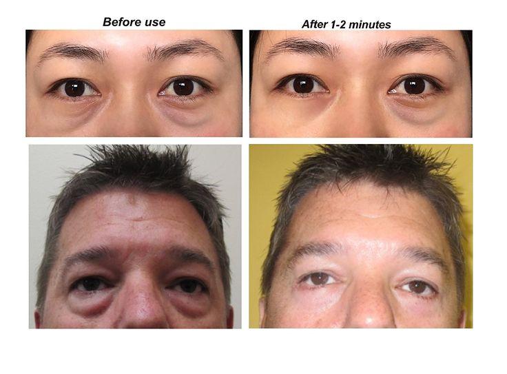 Se puede olvidarse de líneas, arrugas, ojos hinchados, frownlines, arrugas, líneas nasales del labio superior y cicatrices ... en 2 minutos con crema de eliminación de eyebag !!! 15ml: Amazon.es: Salud y cuidado personal