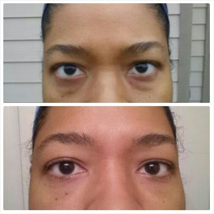 One week of use...her response....WOW..#nobotox $105.  What a difference under her eyes! Wow!