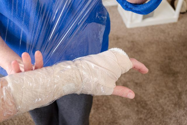 There are few things more frustrating, for both parent and child, than the trauma and recovery from a broken arm or leg. Even if it isn't summer, curtailing water sports and activities, there is never a convenient season of the year. Showers and baths can't be put on hold. There is a range of commercial products for waterproofing casts...
