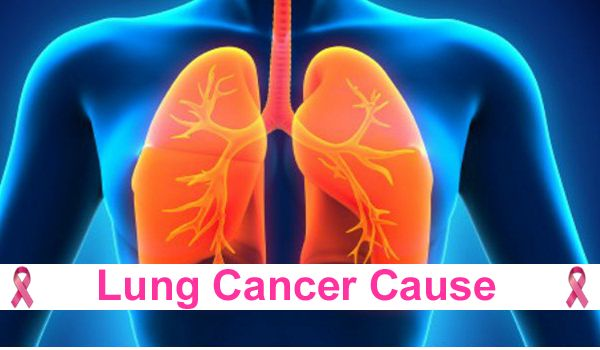 Lung Cancer Cause