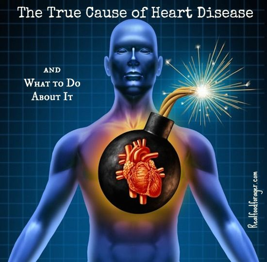 The True Cause of Heart Disease and What to Do About It post image