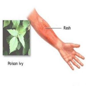 TOP HOME REMEDIES FOR POISON IVY