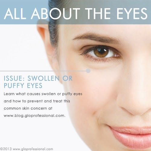 All About the Eyes: Swollen of Puffy Eyes