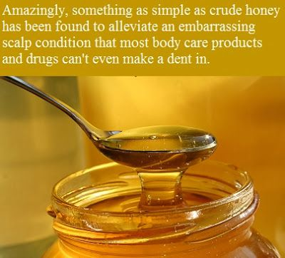Our Enemy the FDA: Honey Heals Chronic Dandruff, Scaly, Itchy Scalp (Seborrheic Dermatitis)