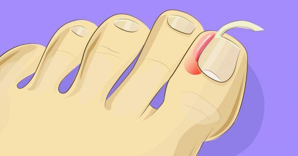 Anyone who has ever dealt with an ingrown toenail knows how unpleasant and painful they can quickly become. The medical term is Unguis incarnatus and if left untreated it can become more than just an annoyance. Ingrown toenails won't heal by themselves and if the affected area becomes infected...