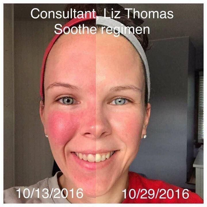 The power of Rodan + Fields' SOOTHE  Another reason I love to share these products! Do you know someone with sensitive skin? Save this Pin or message me to get a FREE consultation from me. Email larmockRF@gmail.com for more info or check out my store at larmock.myrandf.com