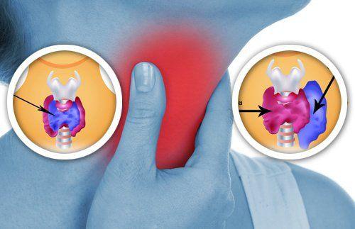 Tarczyca to niewielki gruczoł pełniący bardzo ważną rolę w funkcjonowaniu naszego organizmu. Niestety wiele produktów codziennego użytku może jej szkodzić.