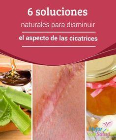 6 soluciones naturales para disminuir el aspecto de las cicatrices   Las cicatrices son antiestéticas y afectan la belleza de la piel. Estas soluciones naturales son una buena opción para disminuir su aspecto.