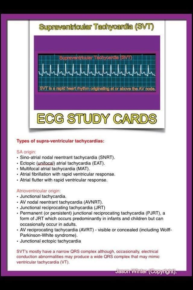 ECG - Supraventricular Tachycardia (SVT)...this is what I have; when my heart goes too fast.