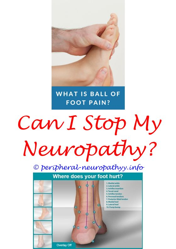 acute ischemic optic neuropathy causes - do neuropathy go away.diabetic peripheral neuropathy pathophysiology pdf water temperature neuropathy treating neuropathy foot pain 4503780402