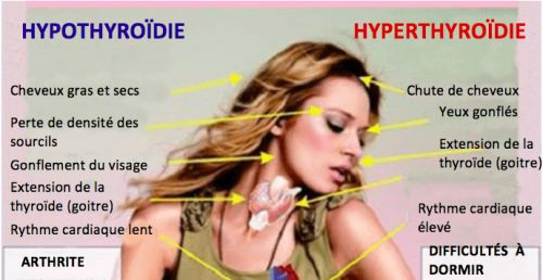 problemes thyroide