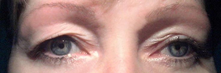 Probeer deze natuurlijke remedie om hangende oogleden te liften.