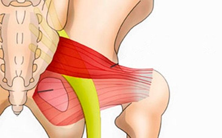 A síndrome do piriforme pode causar muita dor para quem a tem, e por isso nessa matéria trazemos todas as alternativas de tratamento, inclusive o Pilates.